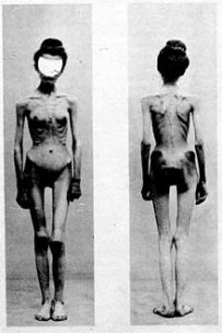anorexia hysterique
