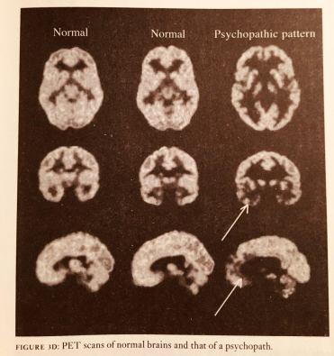jamesfallons-thepsychopathicinside-Petscans-reddit